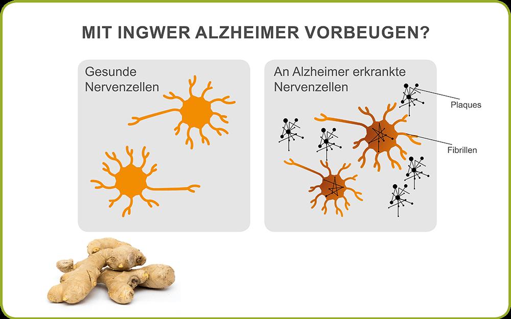 Ingwer und Alzheimer